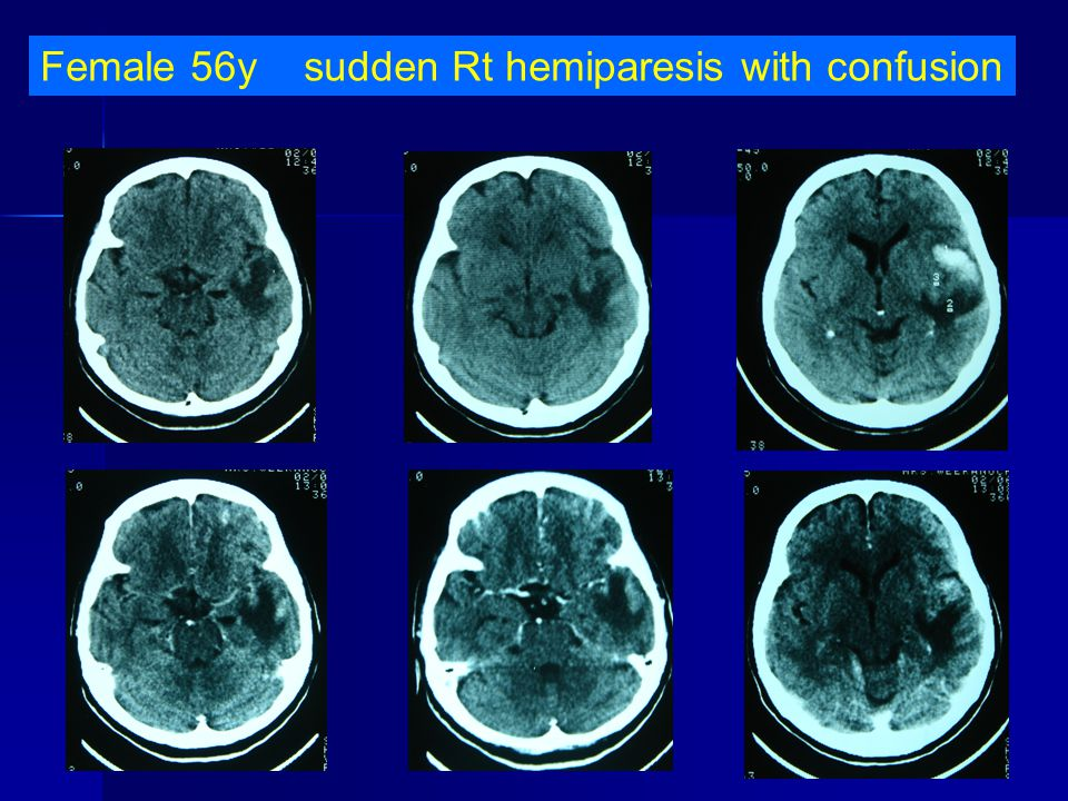 Female 56y sudden Rt hemiparesis with confusion