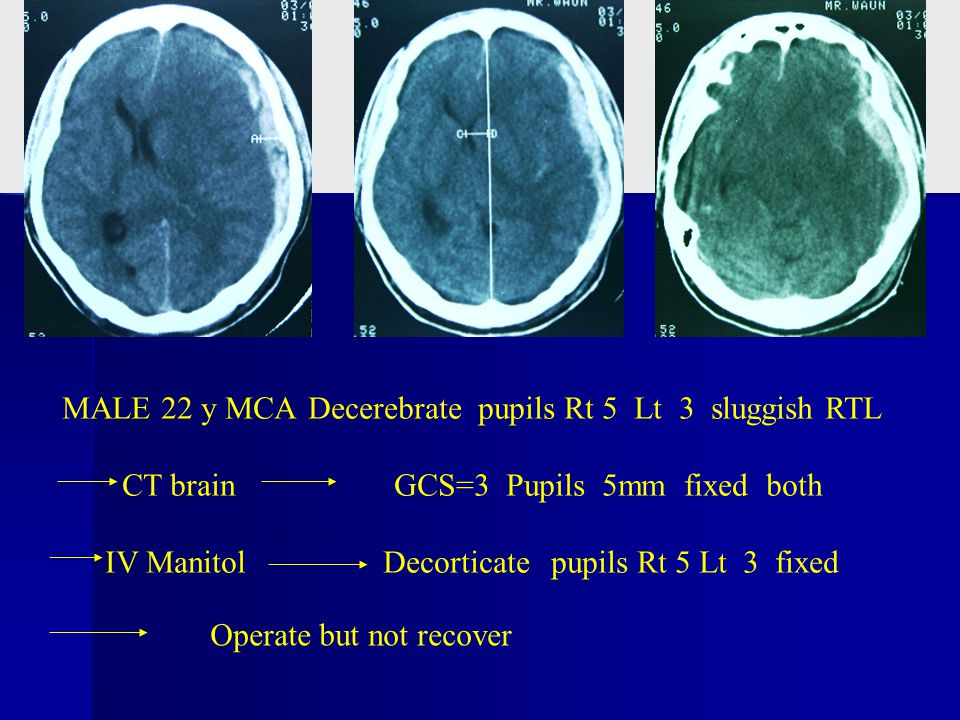 MALE 22 y MCA Decerebrate pupils Rt 5 Lt 3 sluggish RTL