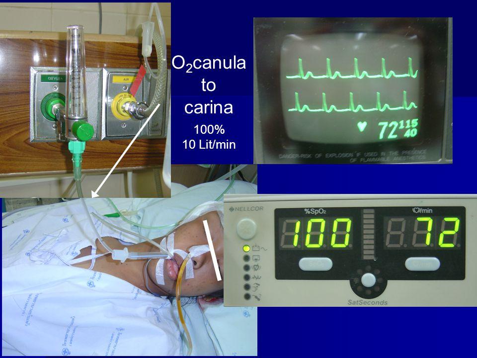 O2canula to carina 100% 10 Lit/min