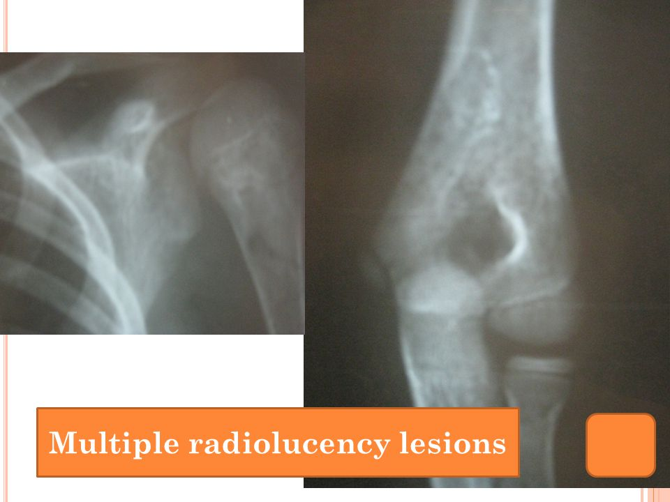 Multiple radiolucency lesions