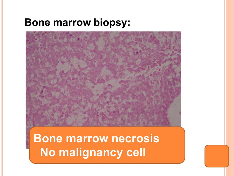Bone marrow biopsy: Bone marrow necrosis No malignancy cell