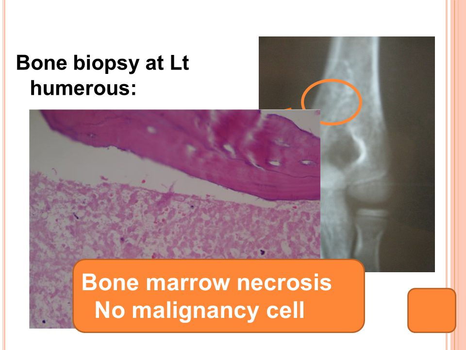 Bone biopsy at Lt humerous: