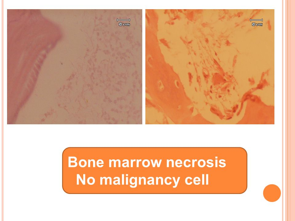 Bone marrow necrosis No malignancy cell