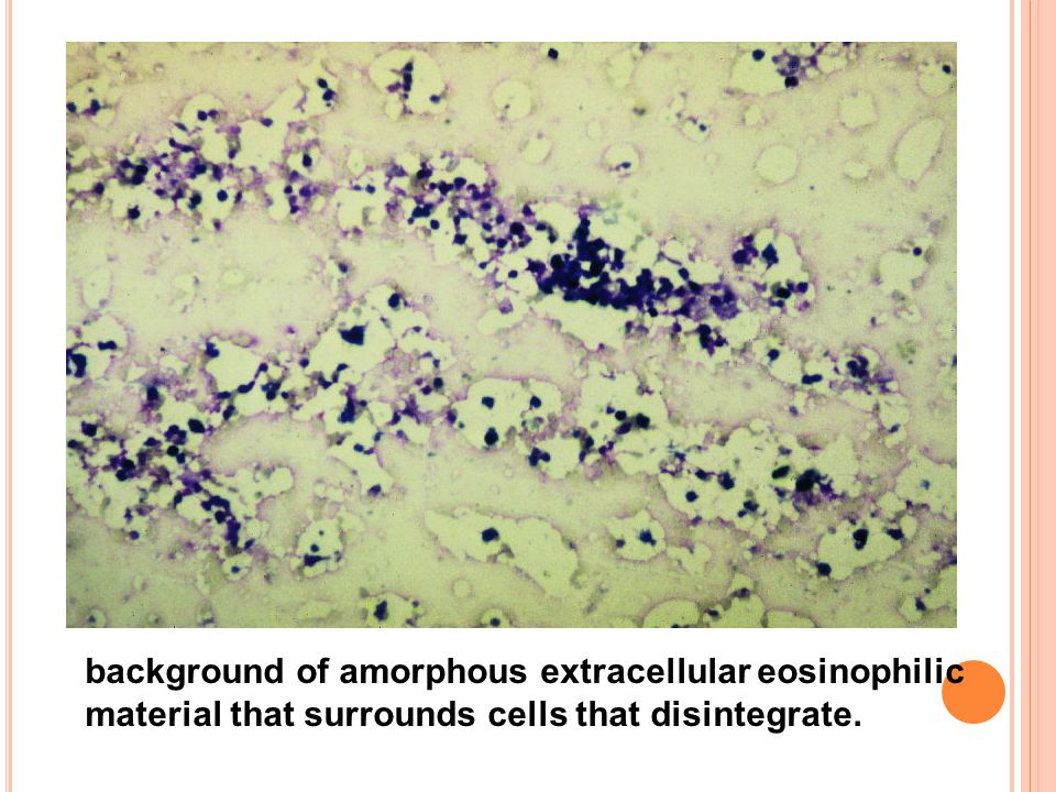 background of amorphous extracellular eosinophilic material that surrounds cells that disintegrate.