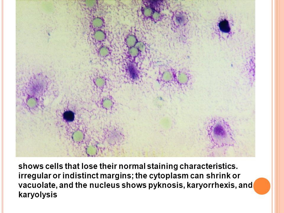 shows cells that lose their normal staining characteristics