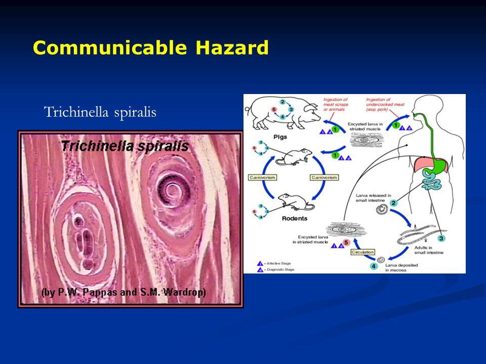 Communicable Hazard Trichinella spiralis