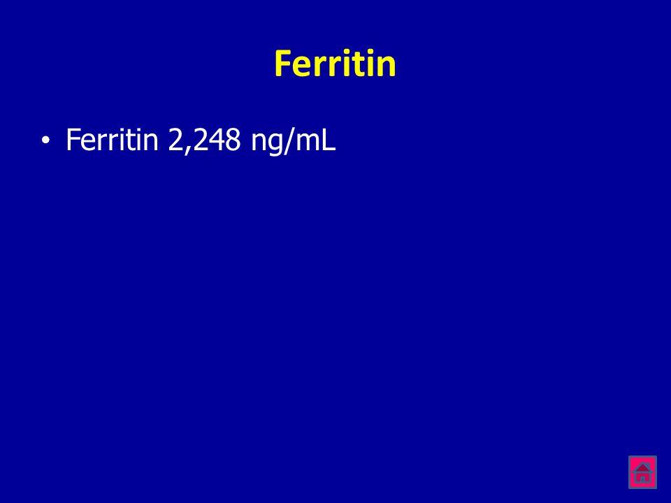 Ferritin Ferritin 2,248 ng/mL