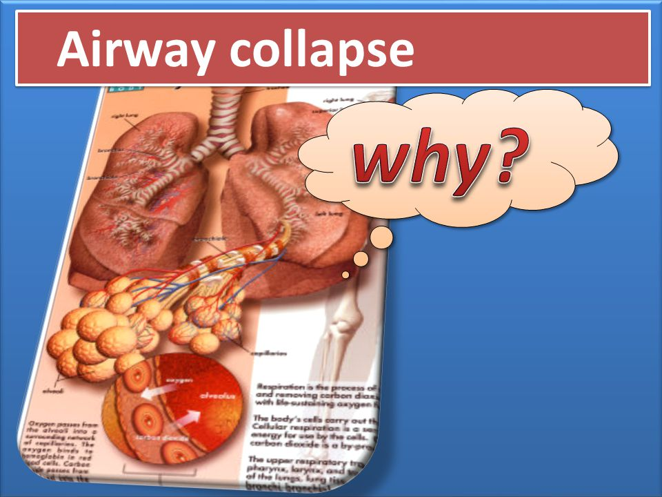 Airway collapse why