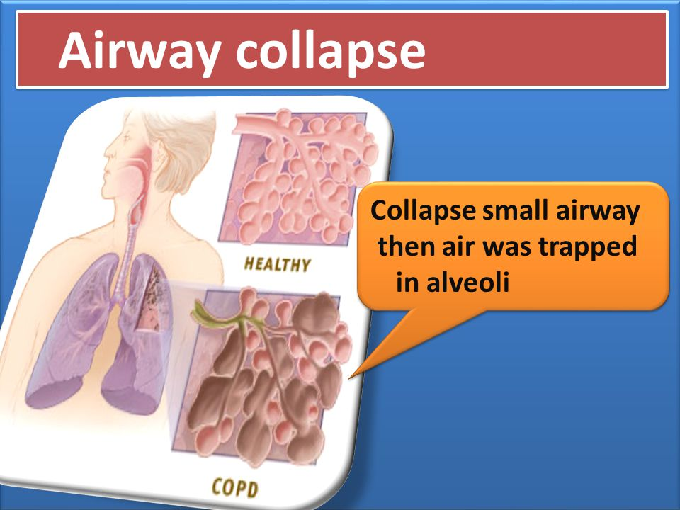Airway collapse Collapse small airway then air was trapped in alveoli