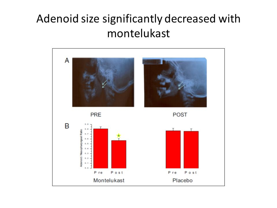 Adenoid size significantly decreased with montelukast