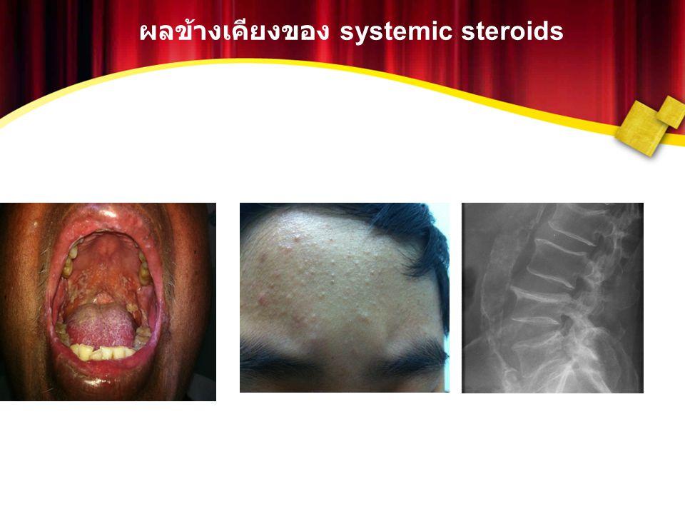 ผลข้างเคียงของ systemic steroids