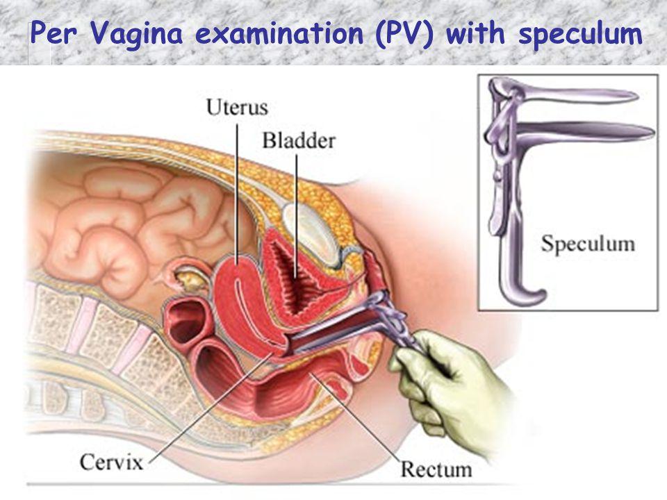 Per Vagina examination (PV) with speculum