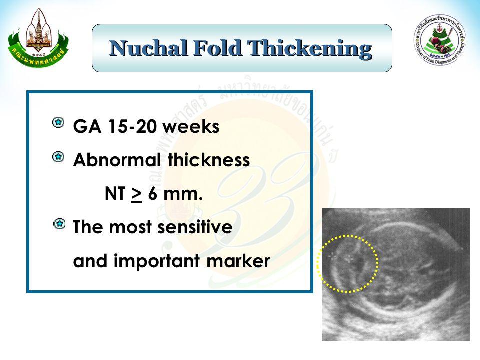 Nuchal Fold Thickening