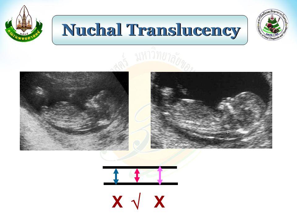 Nuchal Translucency X  X
