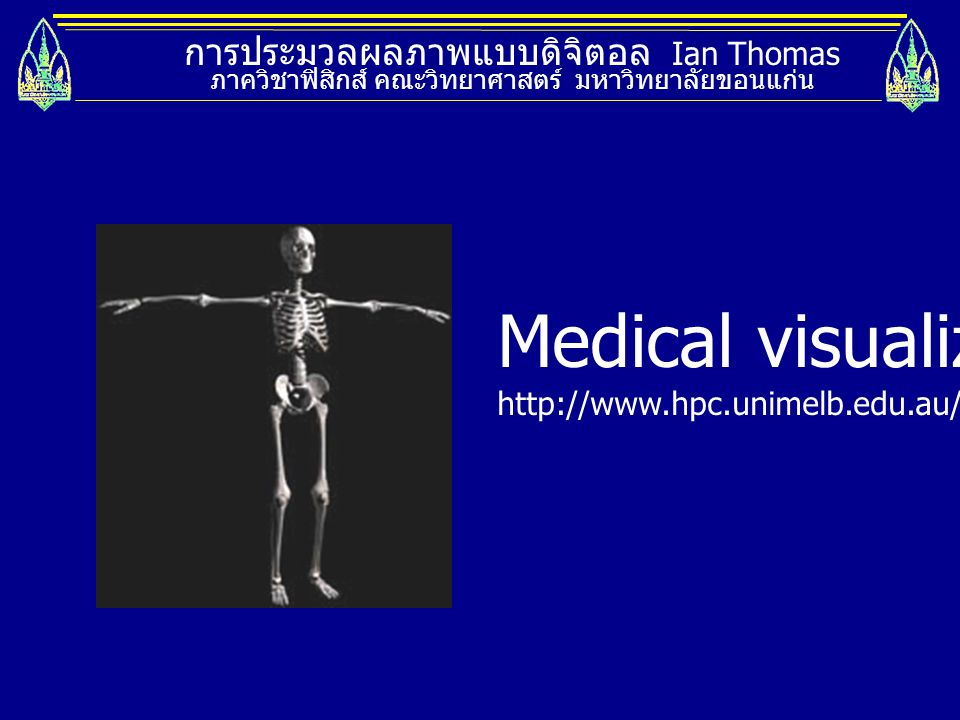 Medical visualization
