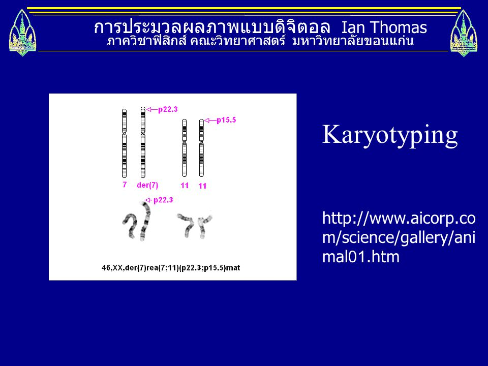 Karyotyping การประมวลผลภาพแบบดิจิตอล Ian Thomas