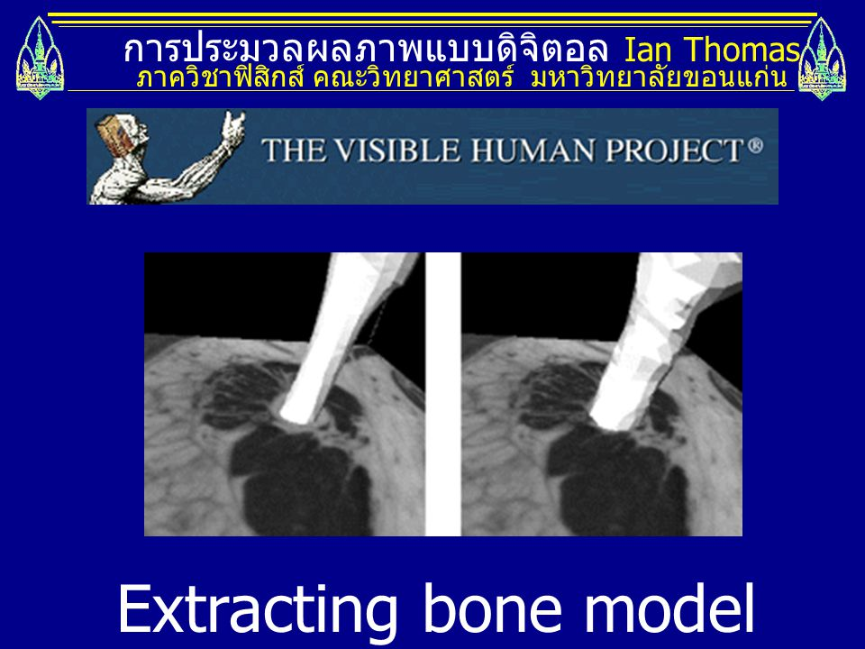 Extracting bone model from 3D dataset