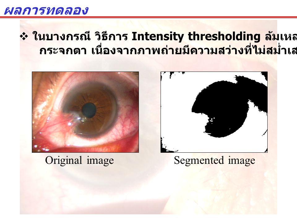 ผลการทดลอง ในบางกรณี วิธีการ Intensity thresholding ล้มเหลวในการแยกแยะพื้นที่ กระจกตา เนื่องจากภาพถ่ายมีความสว่างที่ไม่สม่ำเสมอ.
