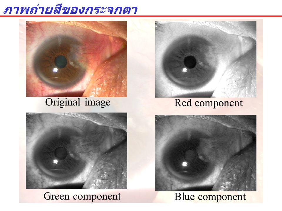 ภาพถ่ายสีของกระจกตา Original image Red component Green component