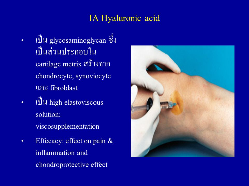 IA Hyaluronic acid เป็น glycosaminoglycan ซึ่งเป็นส่วนประกอบใน cartilage metrix สร้างจาก chondrocyte, synoviocyte และ fibroblast.