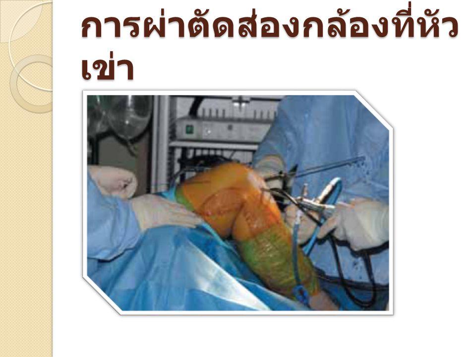 การผ่าตัดส่องกล้องที่หัวเข่า