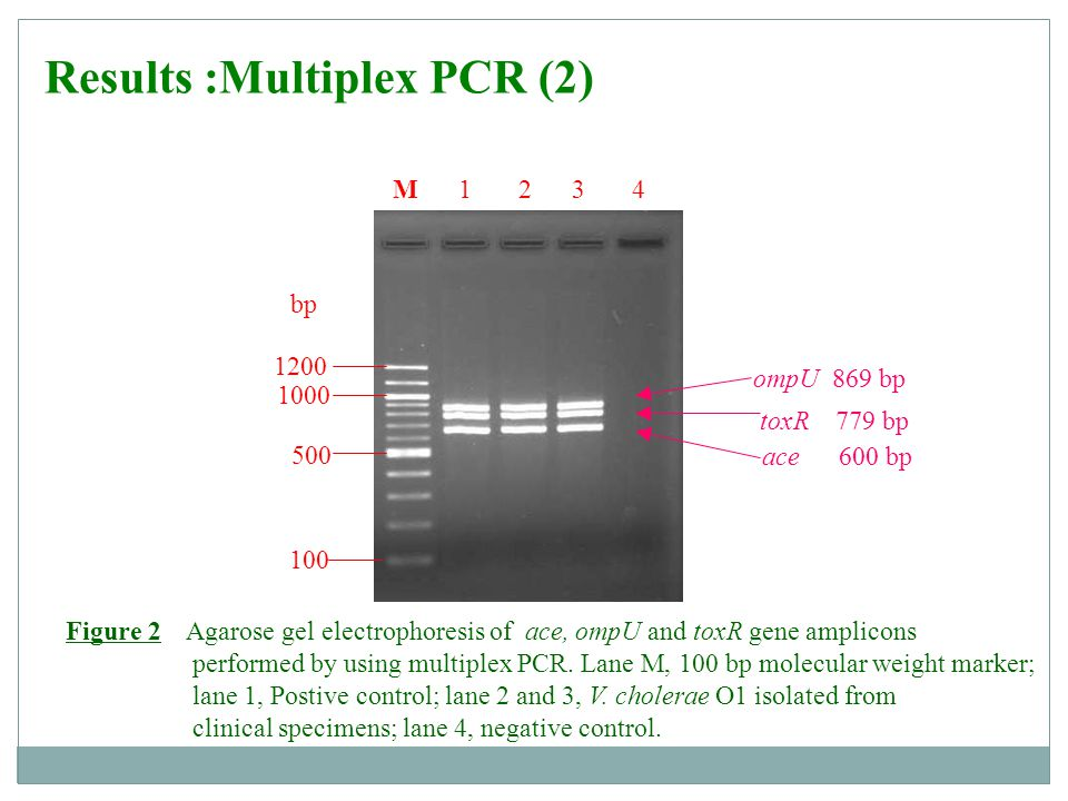 Results :Multiplex PCR (2)