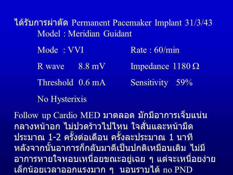 ได้รับการผ่าตัด Permanent Pacemaker Implant 31/3/43