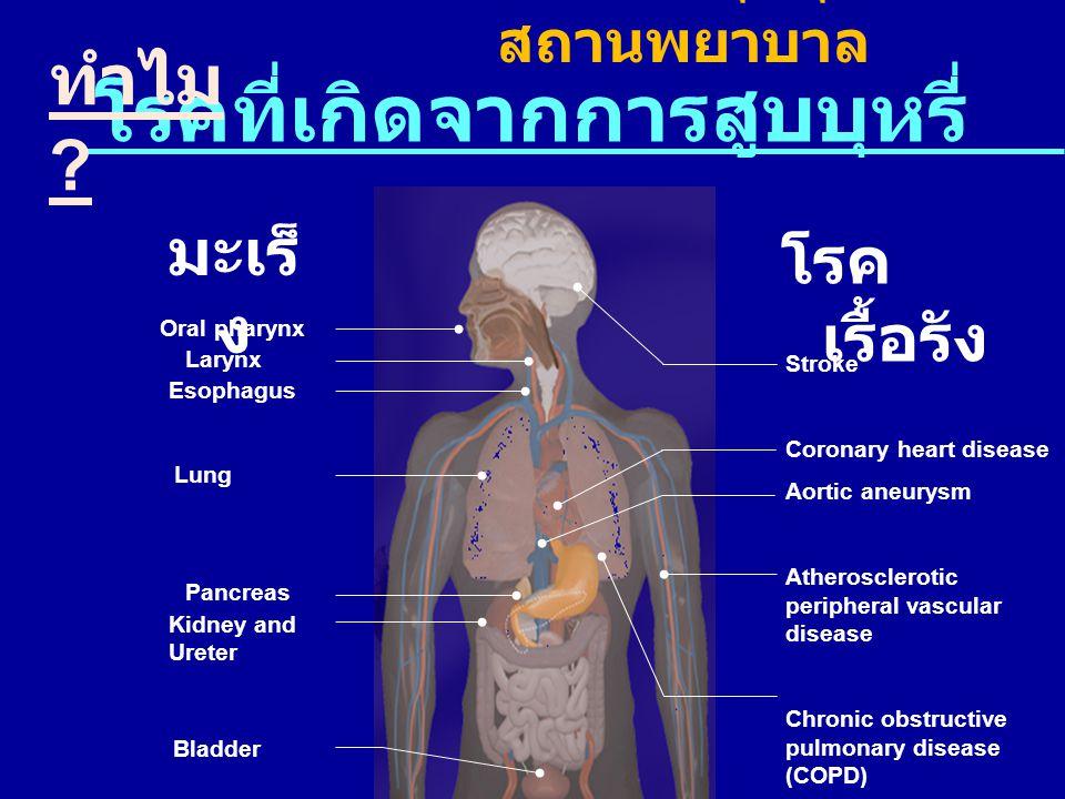โรคที่เกิดจากการสูบบุหรี่