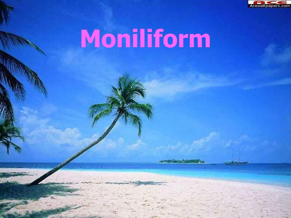 Moniliform