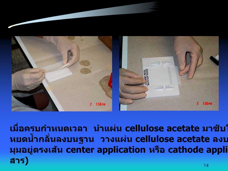 เมื่อครบกำหนดเวลา นำแผ่น cellulose acetate มาซับให้แห้งโดยใช้กระดาษกรอง