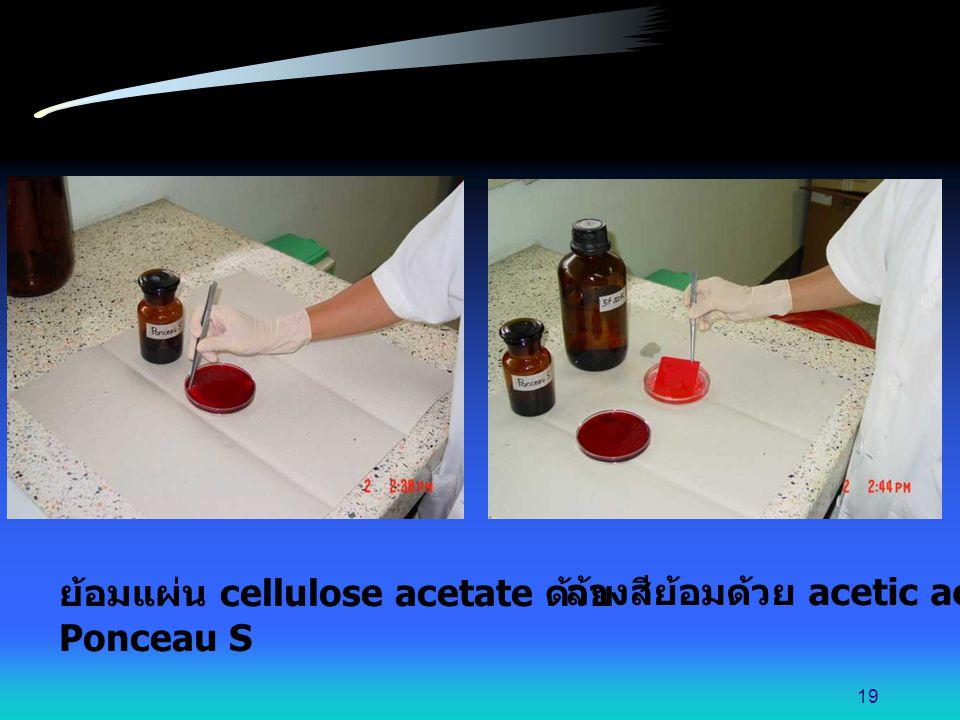 ย้อมแผ่น cellulose acetate ด้วย
