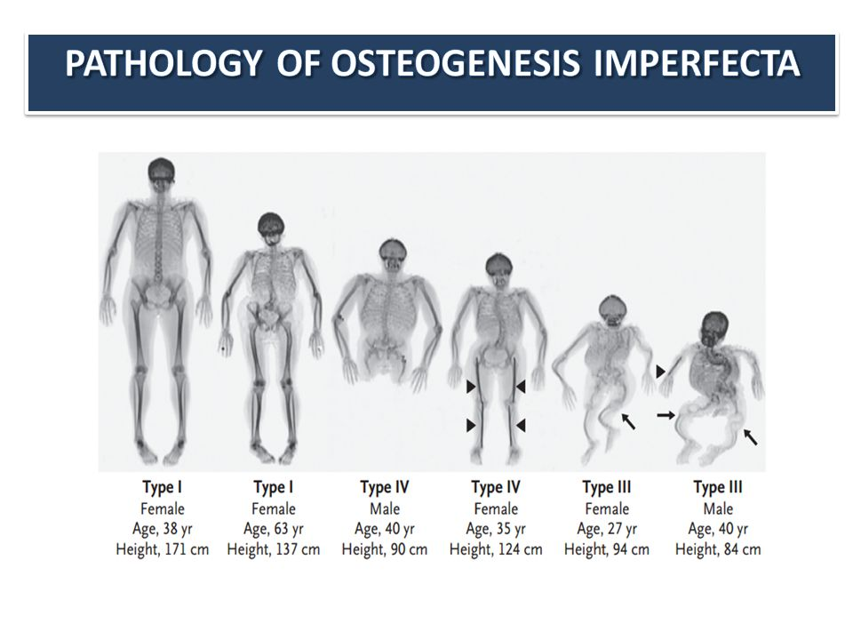 PATHOLOGY OF OSTEOGENESIS IMPERFECTA