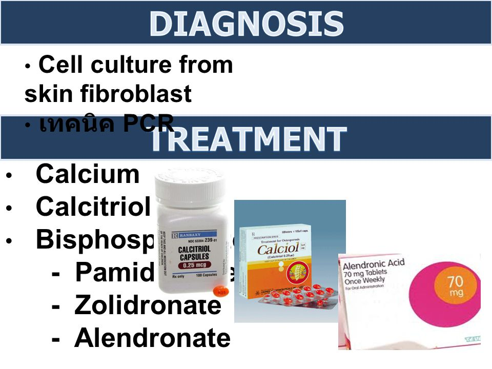 DIAGNOSIS Treatment Calcium Calcitriol Bisphosphonate - Pamidronate