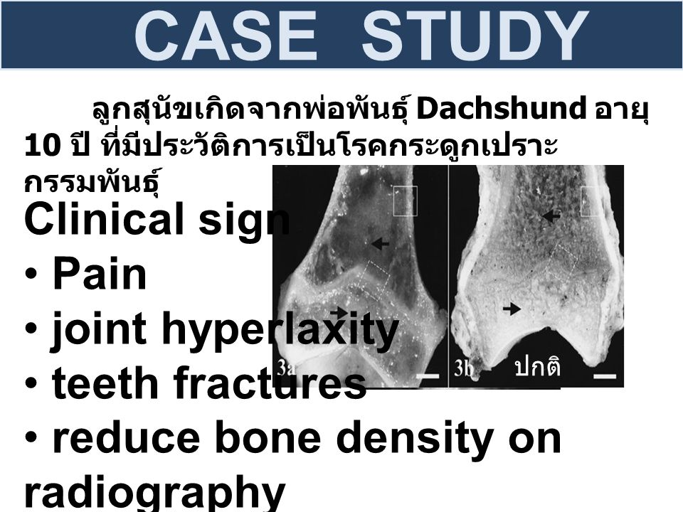 CASE STUDY Clinical sign Pain joint hyperlaxity teeth fractures