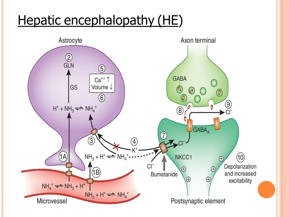 Hepatic encephalopathy (HE)