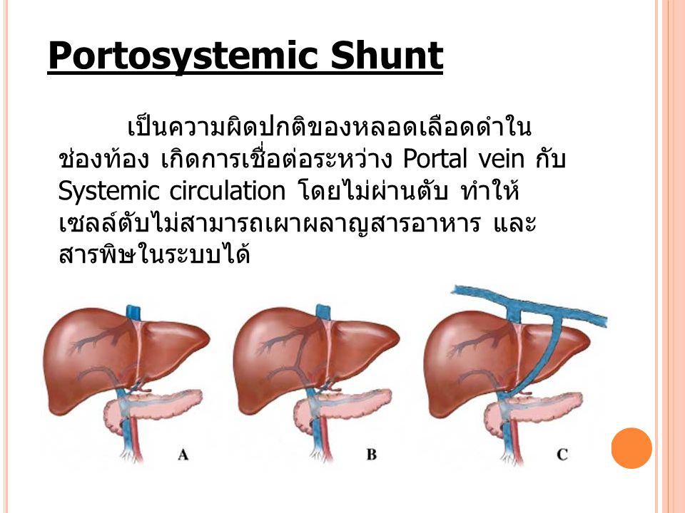 Portosystemic Shunt