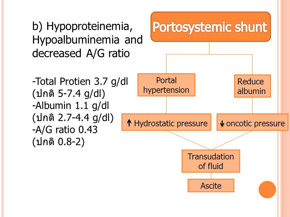 b) Hypoproteinemia, Hypoalbuminemia and decreased A/G ratio
