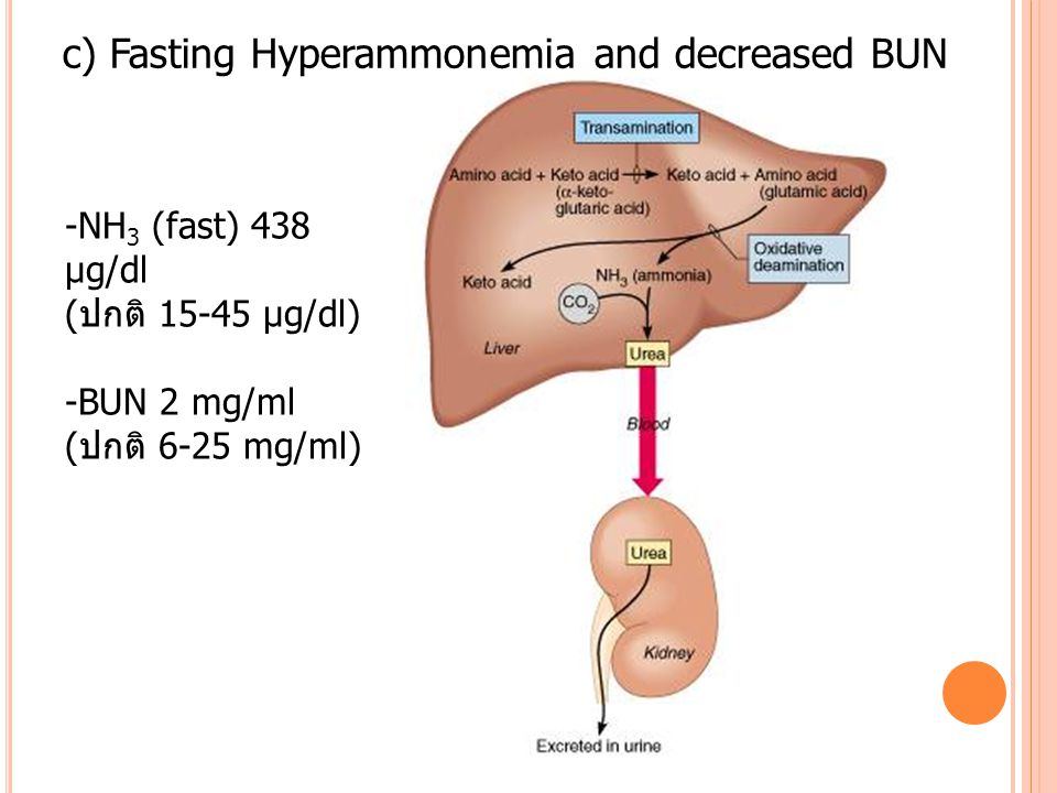 c) Fasting Hyperammonemia and decreased BUN