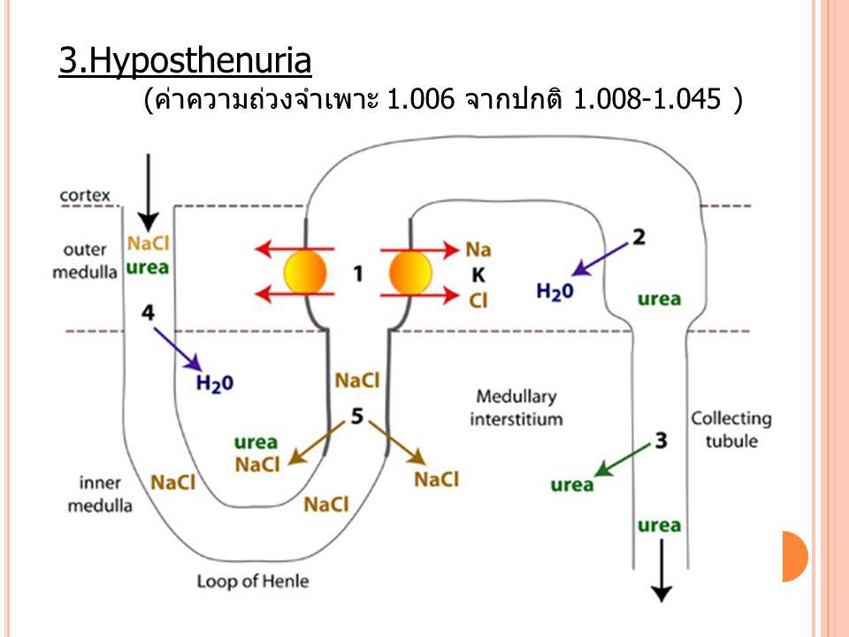 3.Hyposthenuria (ค่าความถ่วงจำเพาะ 1.006 จากปกติ 1.008-1.045 )