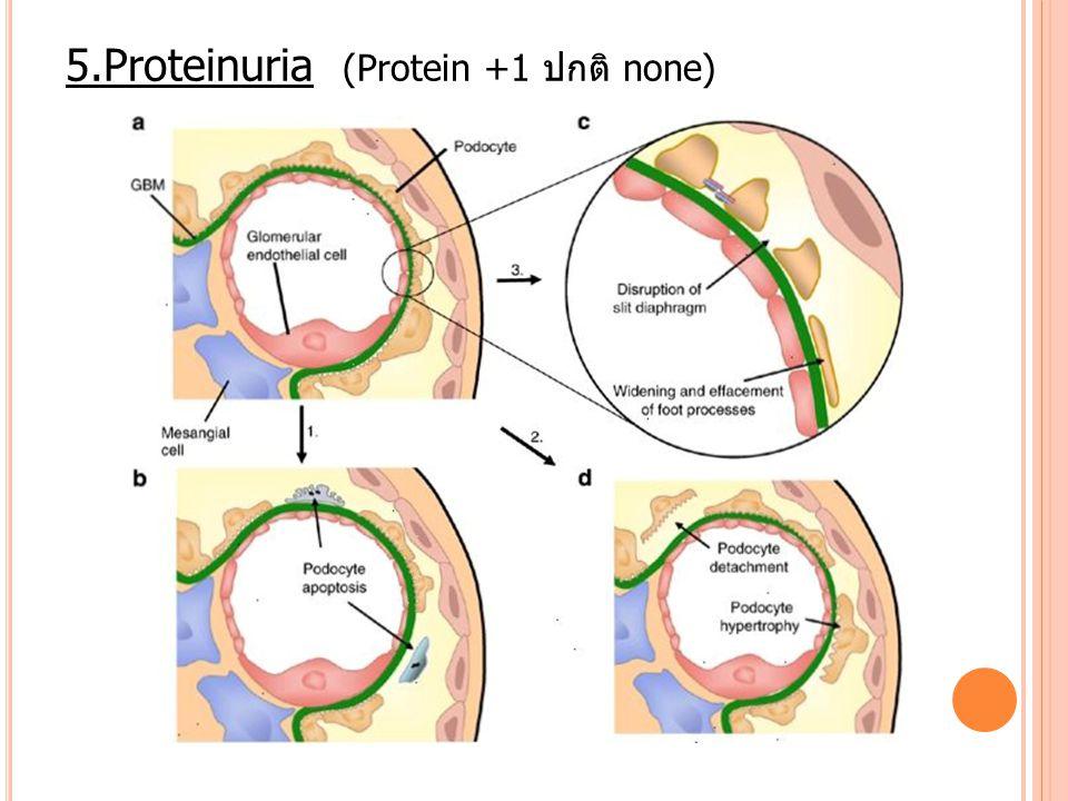 5.Proteinuria (Protein +1 ปกติ none)