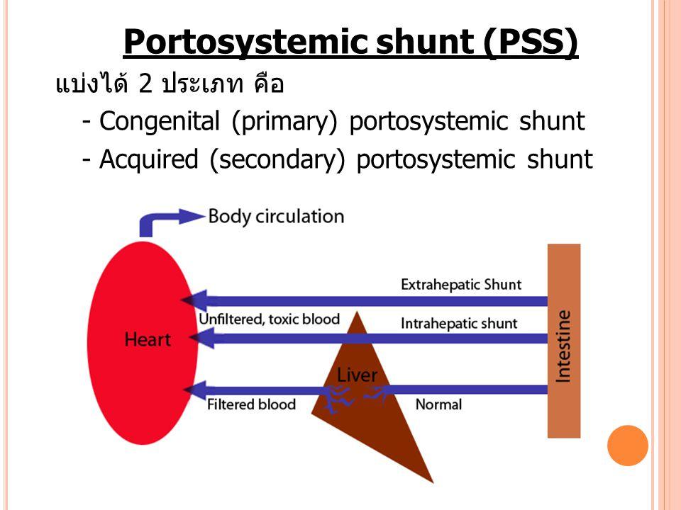 Portosystemic shunt (PSS)