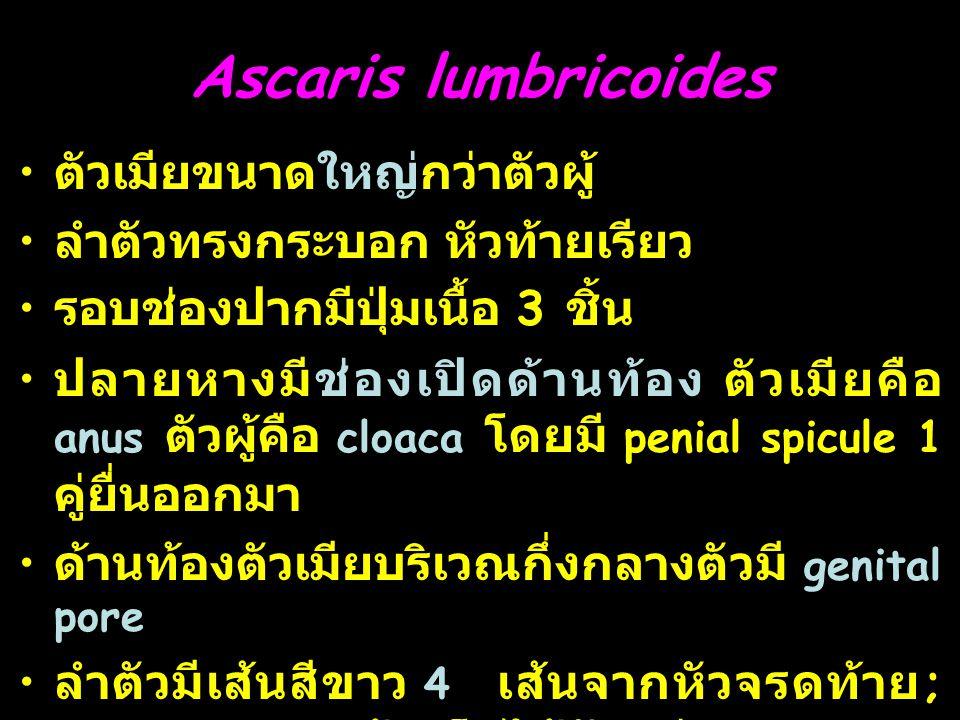 Ascaris lumbricoides ตัวเมียขนาดใหญ่กว่าตัวผู้