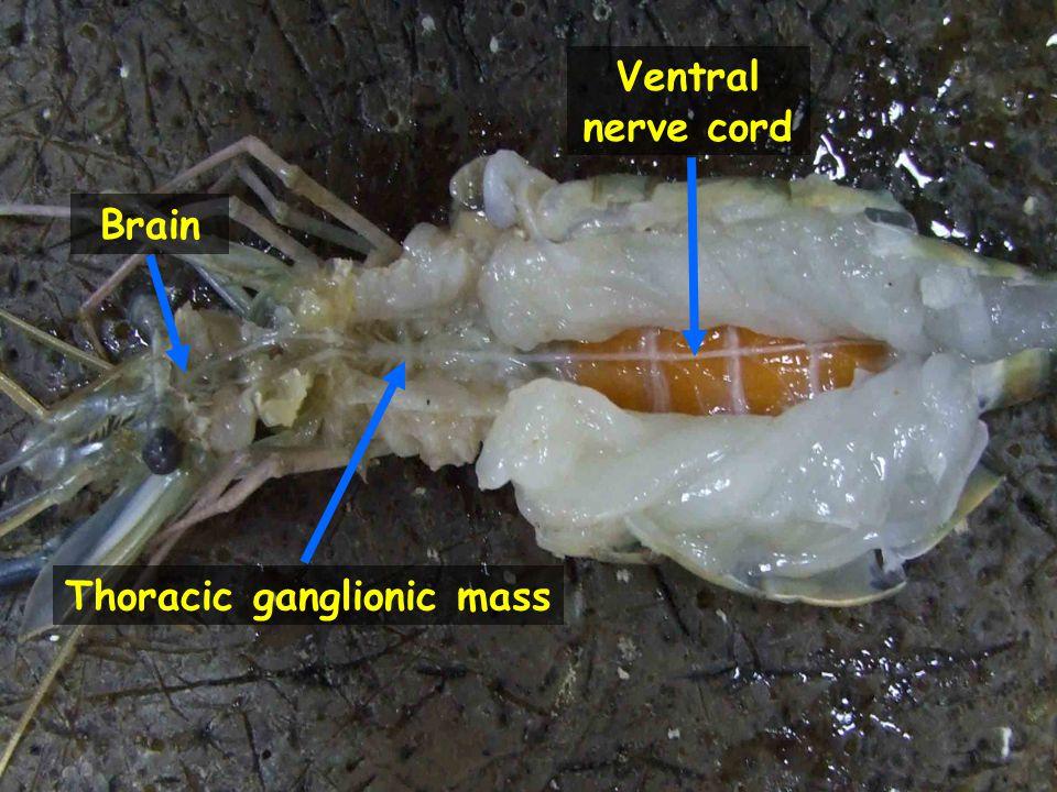 Thoracic ganglionic mass
