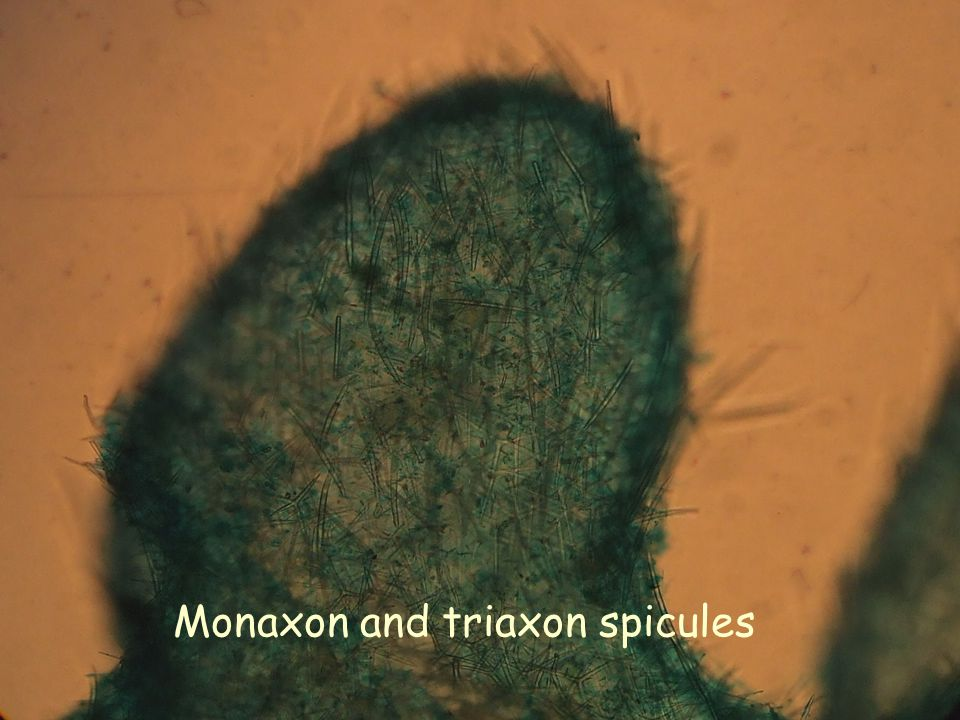Monaxon and triaxon spicules