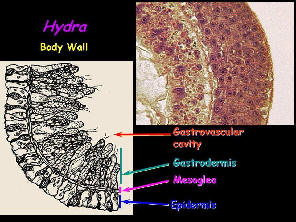 Hydra Body Wall Gastrovascular cavity Gastrodermis Mesoglea Epidermis