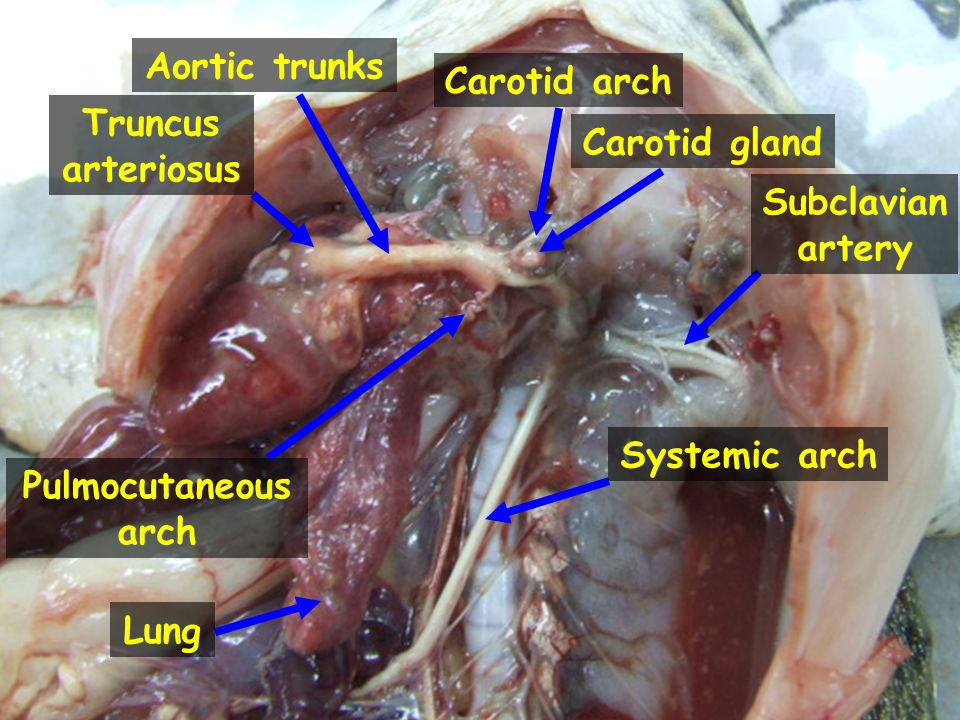 Aortic trunks Carotid arch. Truncus arteriosus. Carotid gland. Subclavian artery. Systemic arch.