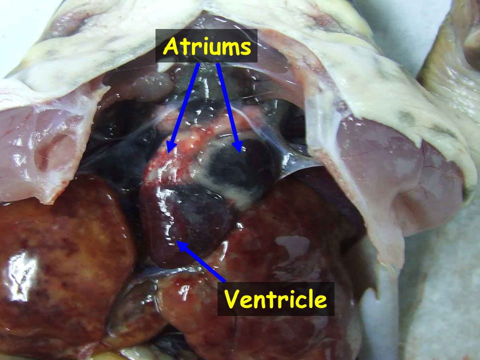 Atriums Ventricle