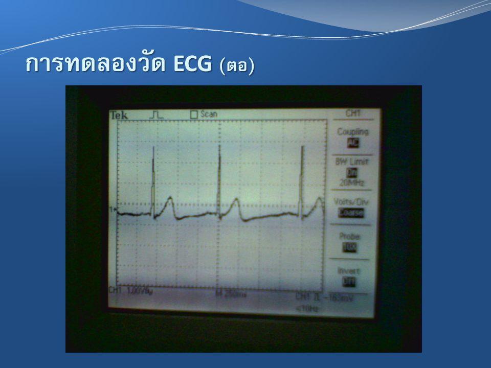 การทดลองวัด ECG (ต่อ)