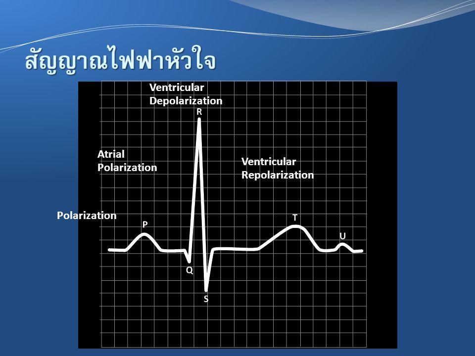 สัญญาณไฟฟ้าหัวใจ Ventricular Depolarization Atrial Polarization