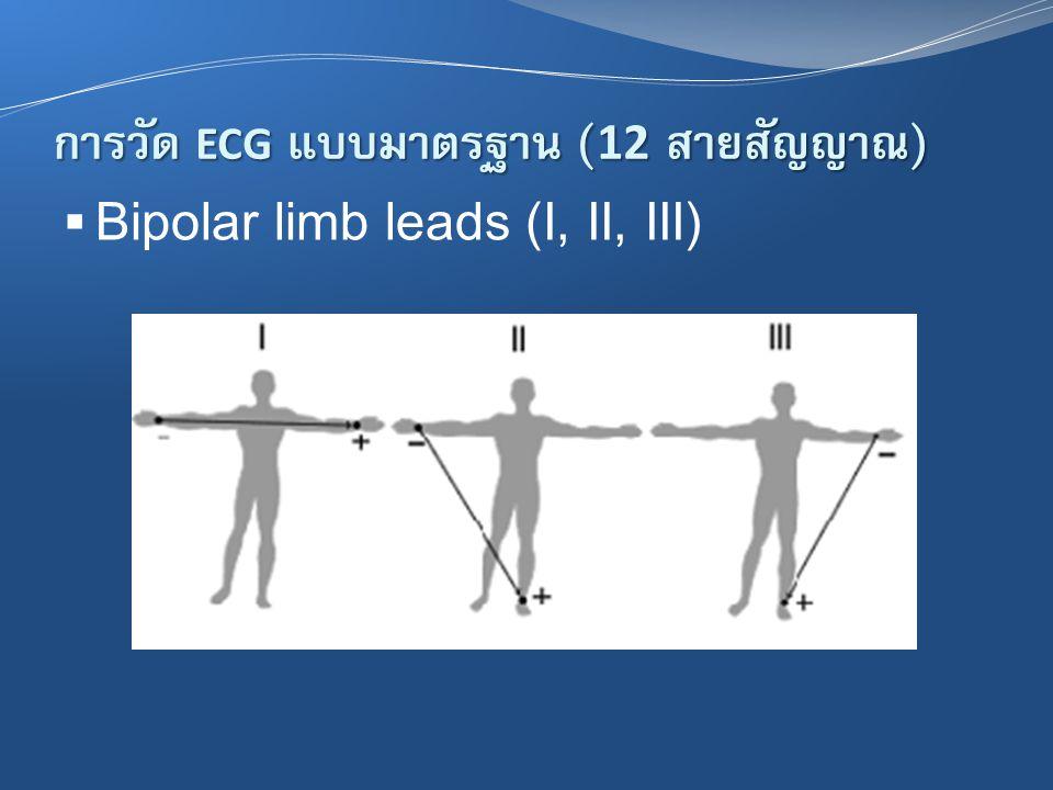 การวัด ECG แบบมาตรฐาน (12 สายสัญญาณ)